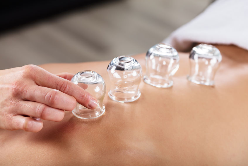 Cupping Therapy NYC Queens